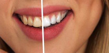Czy warto wybielić zęby?