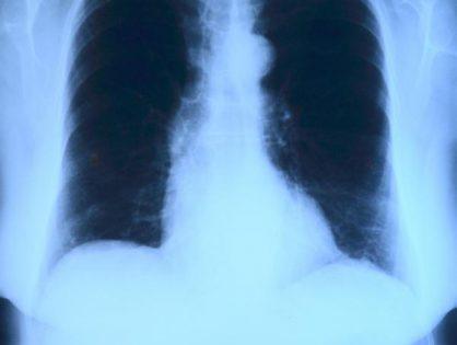 Badanie rentgenowskie klatki piersiowej